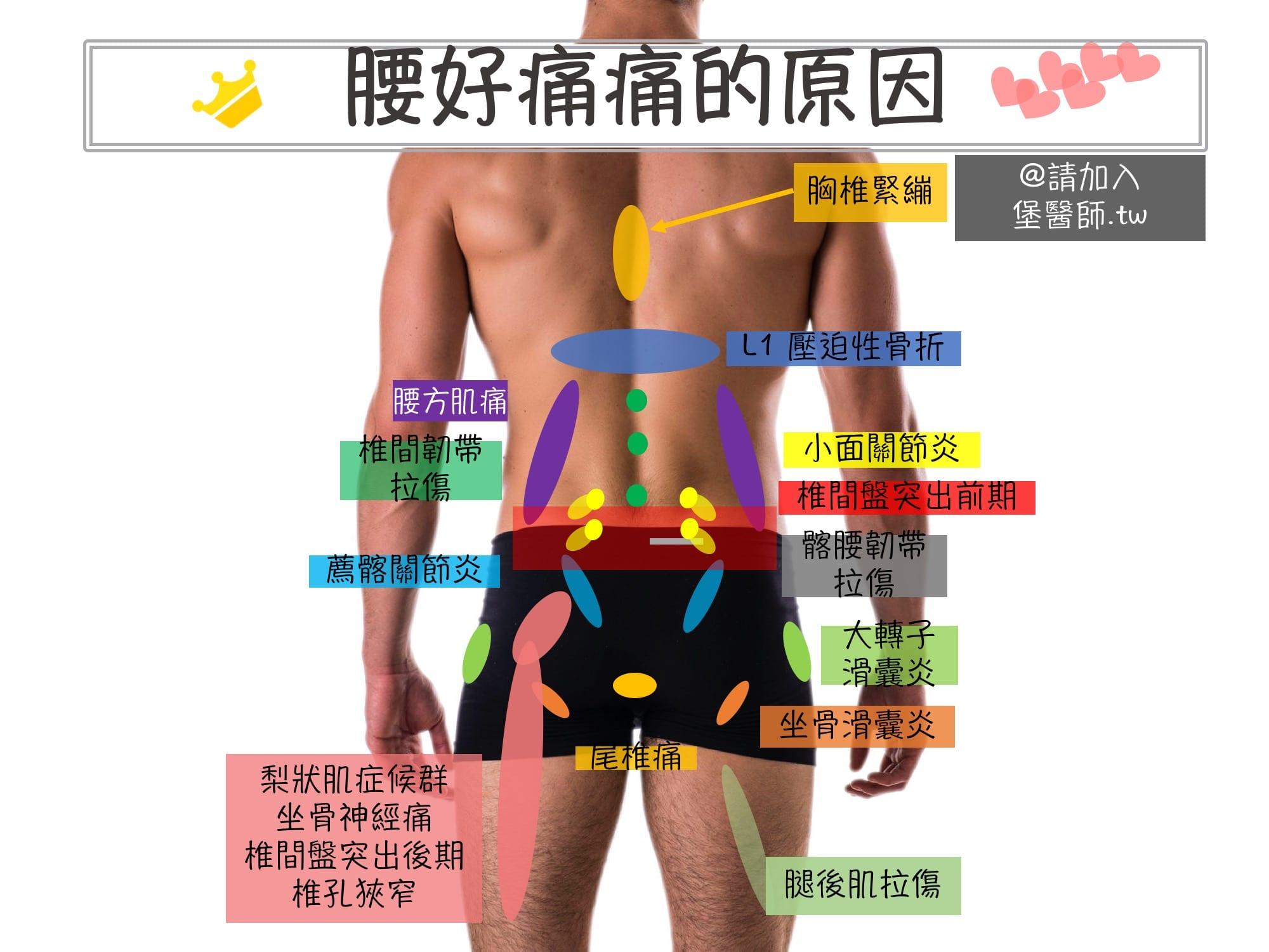 腰痛下背痛的原因