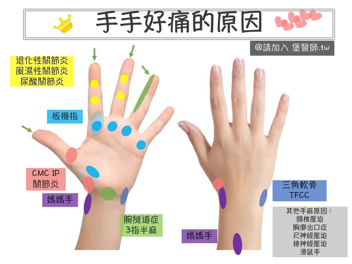 手腕痛,手指痛的原因與治療