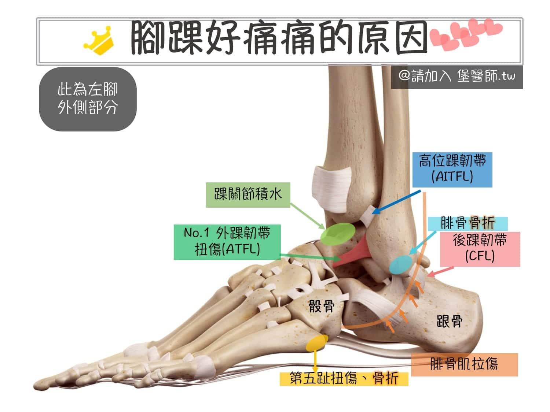 腳踝扭傷外側痛