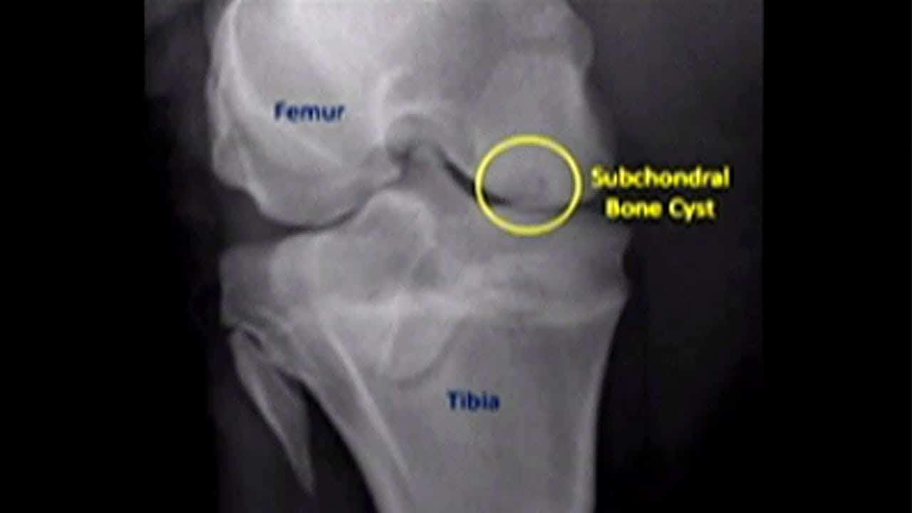 膝關節退化囊腫 骨內注射2