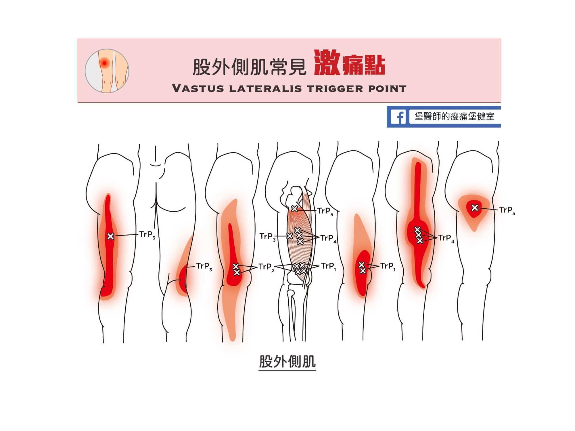 股外側肌激痛點