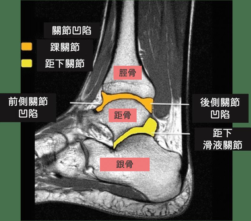 踝關節構造-距下關節構造