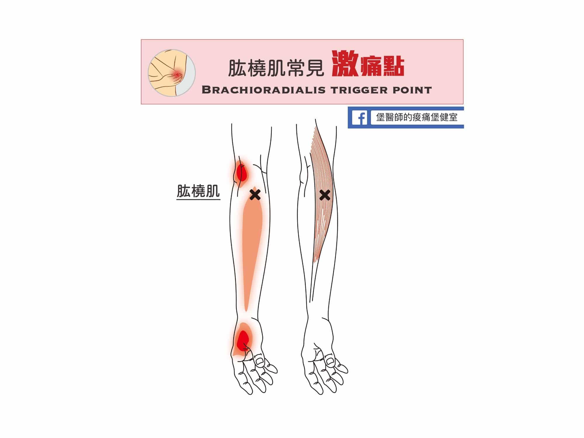 前臂痛手腕痛-肱橈肌