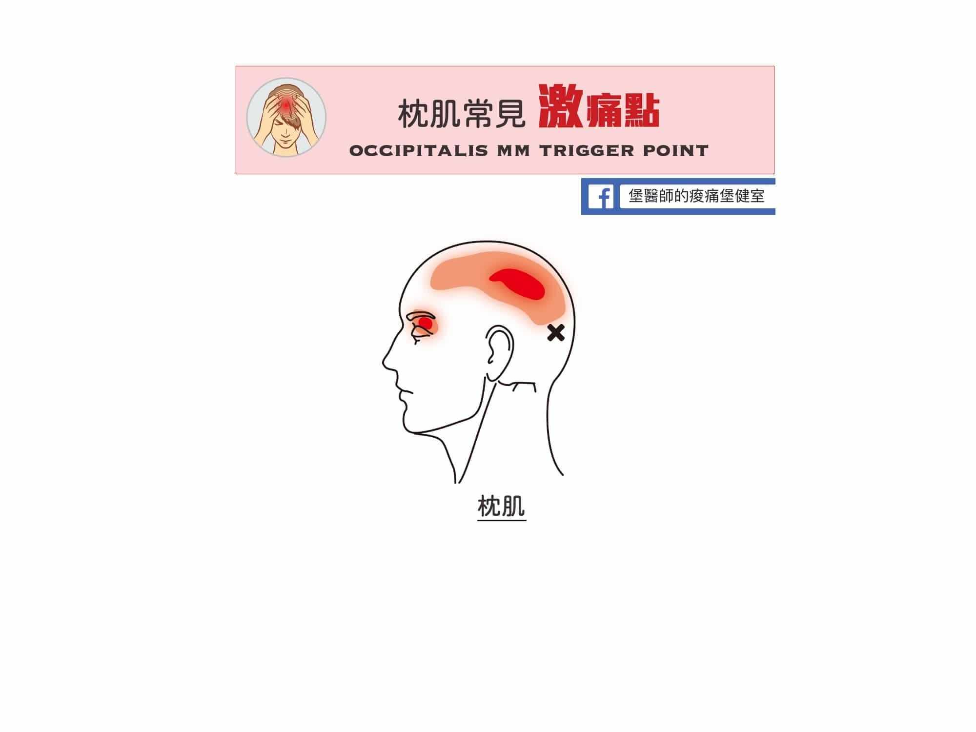 頭痛-枕肌常見激痛點