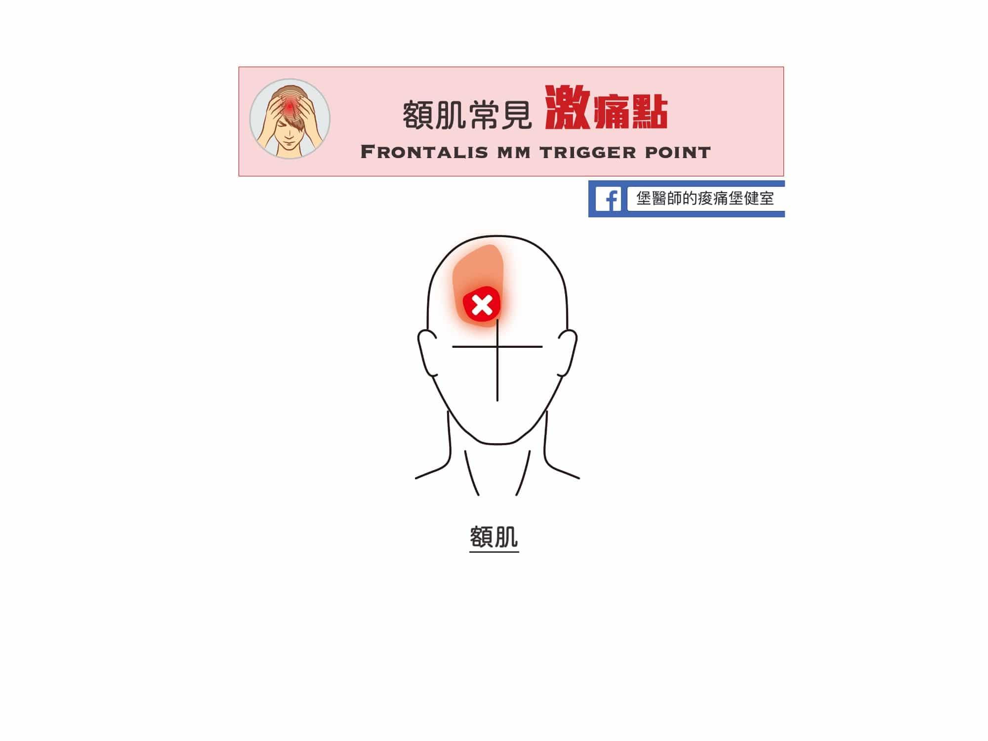 頭痛-額肌常見激痛點