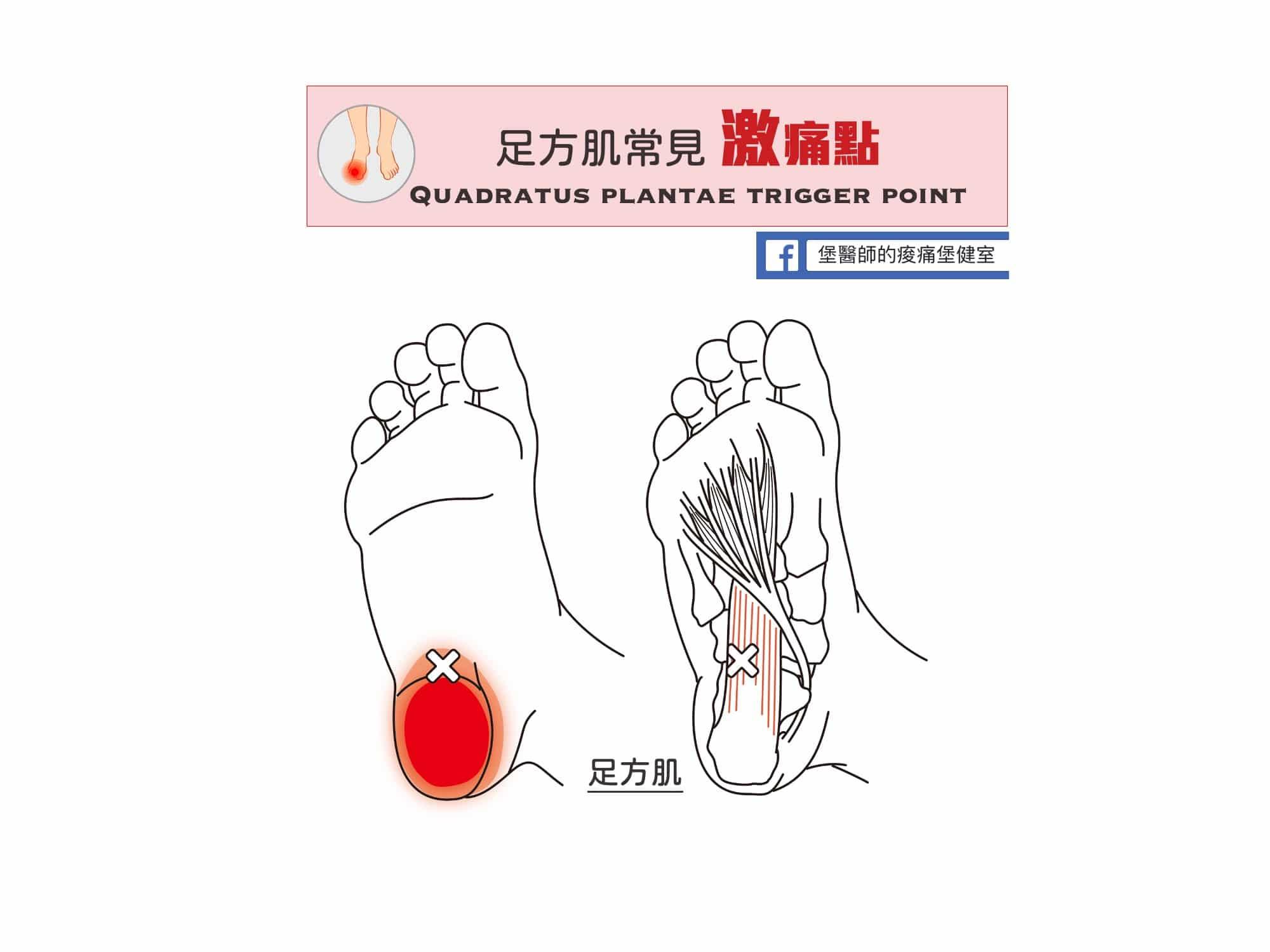 足部痛-足方肌常見激痛點