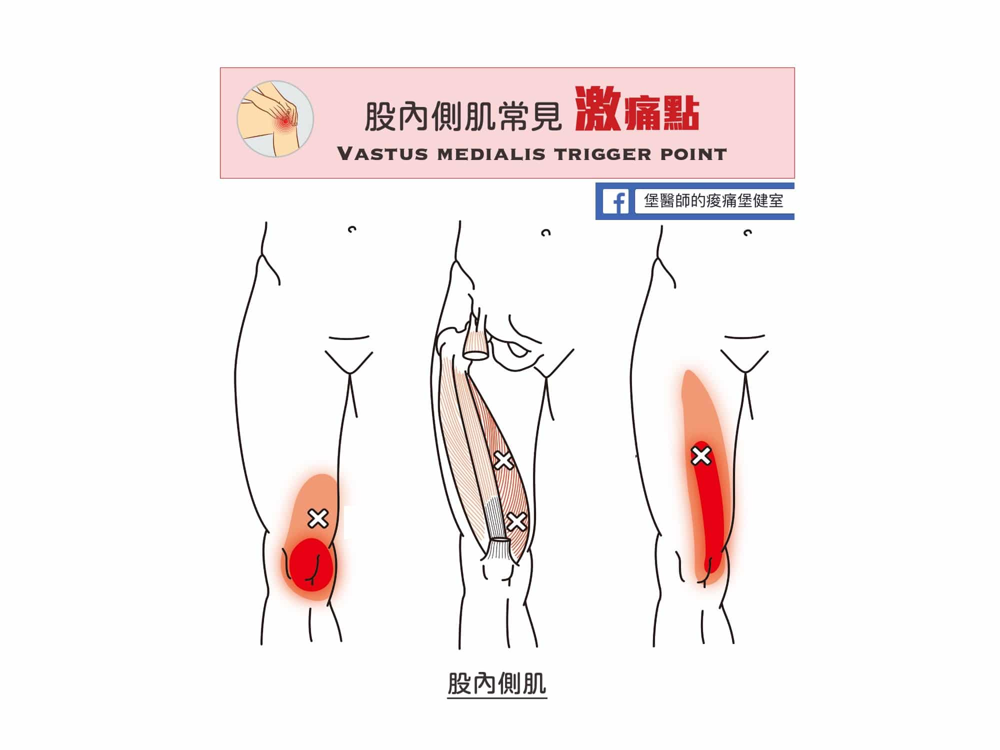 大腿膝蓋痛-股內側肌常見激痛點