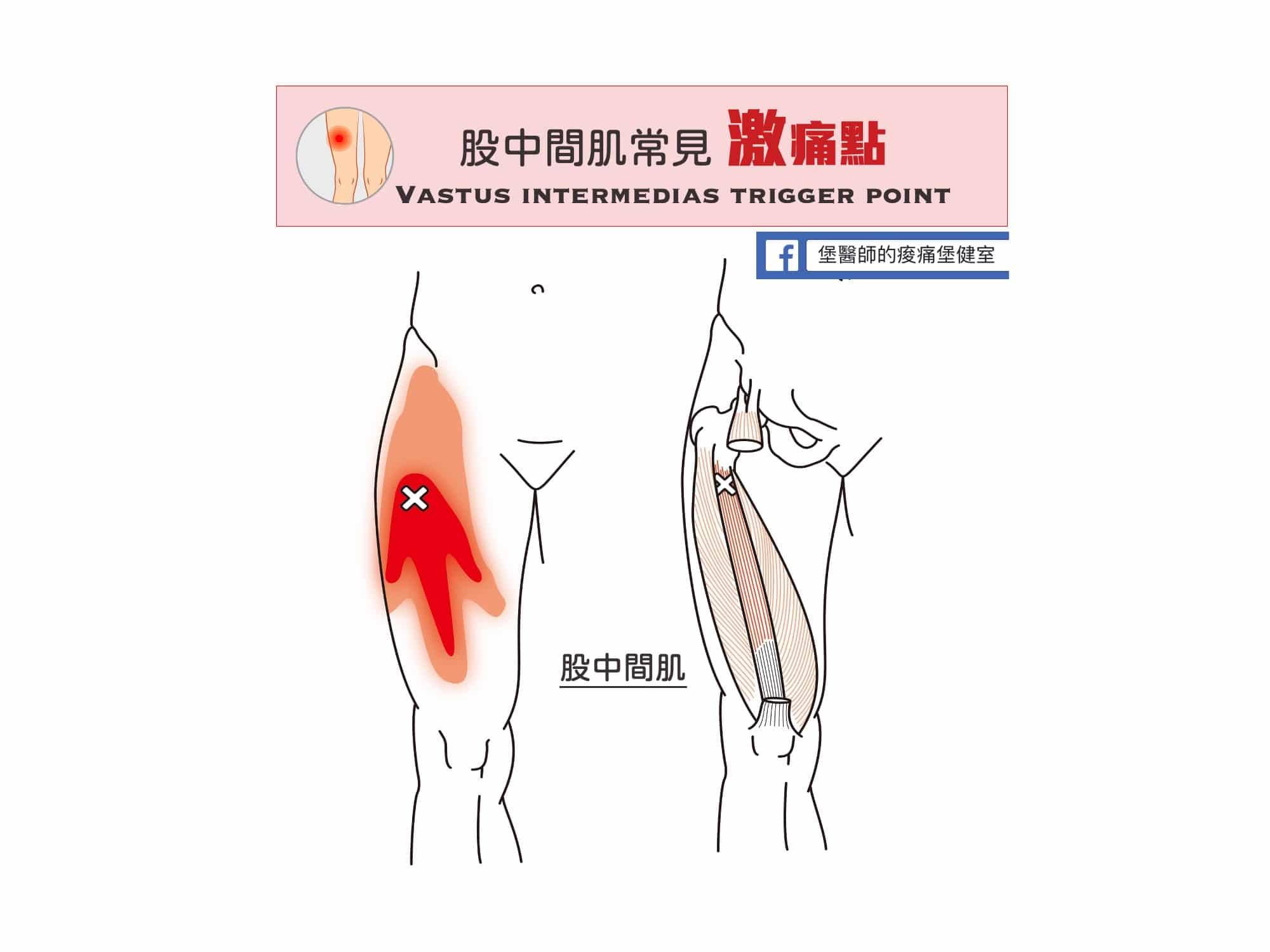 大腿痛-股中間肌常見激痛點