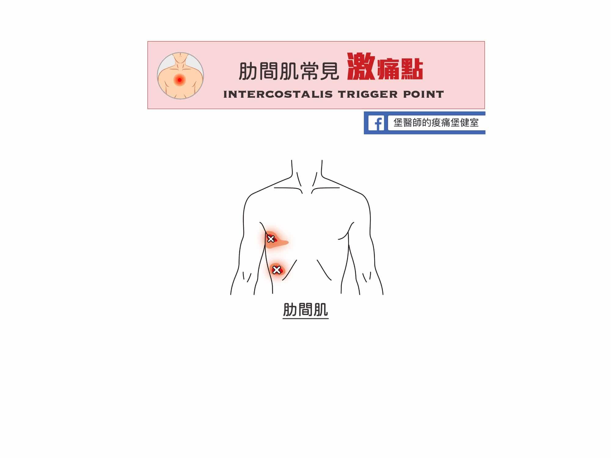 胸痛-肋間肌常見激痛點