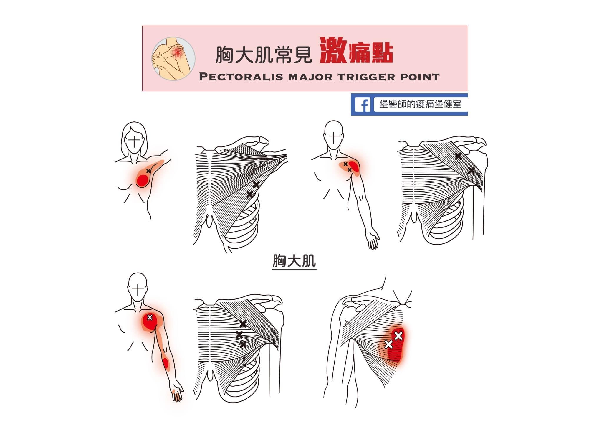 肩膀胸部痛-胸大肌常見激痛點