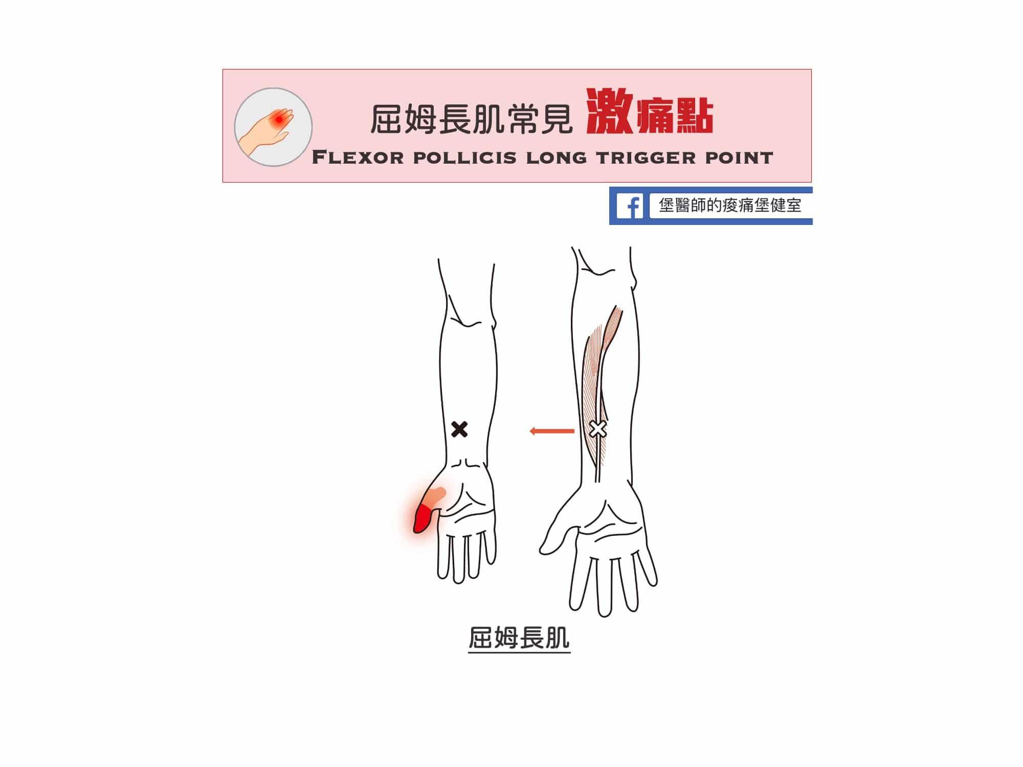 手指痛前臂痛-屈姆長肌