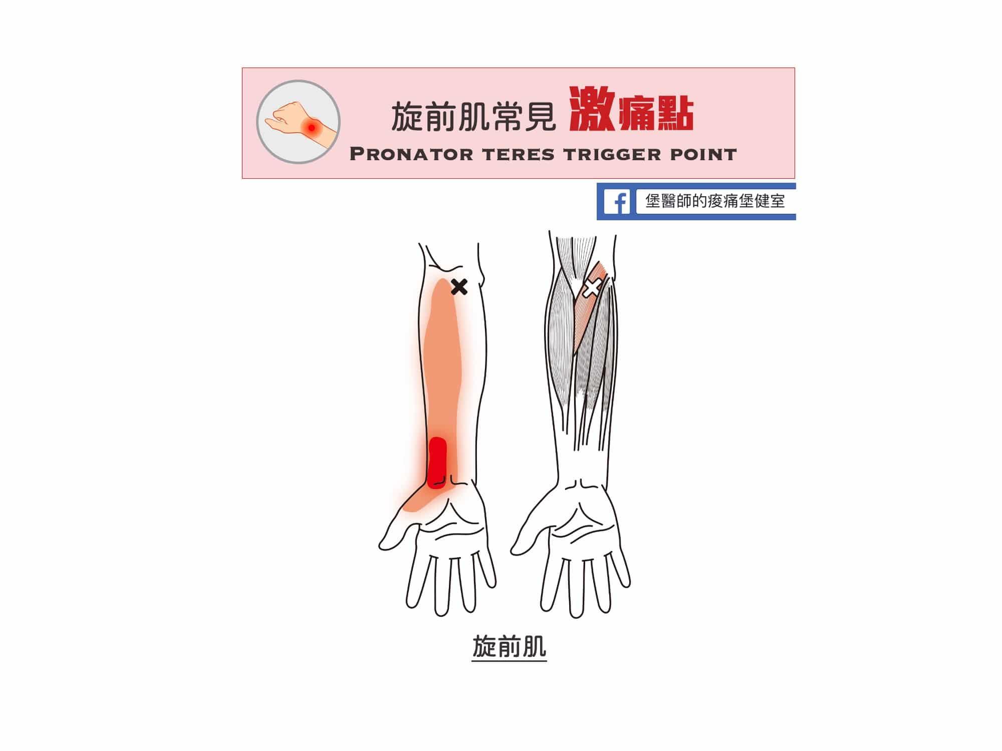 手肘痛手腕痛-旋前肌