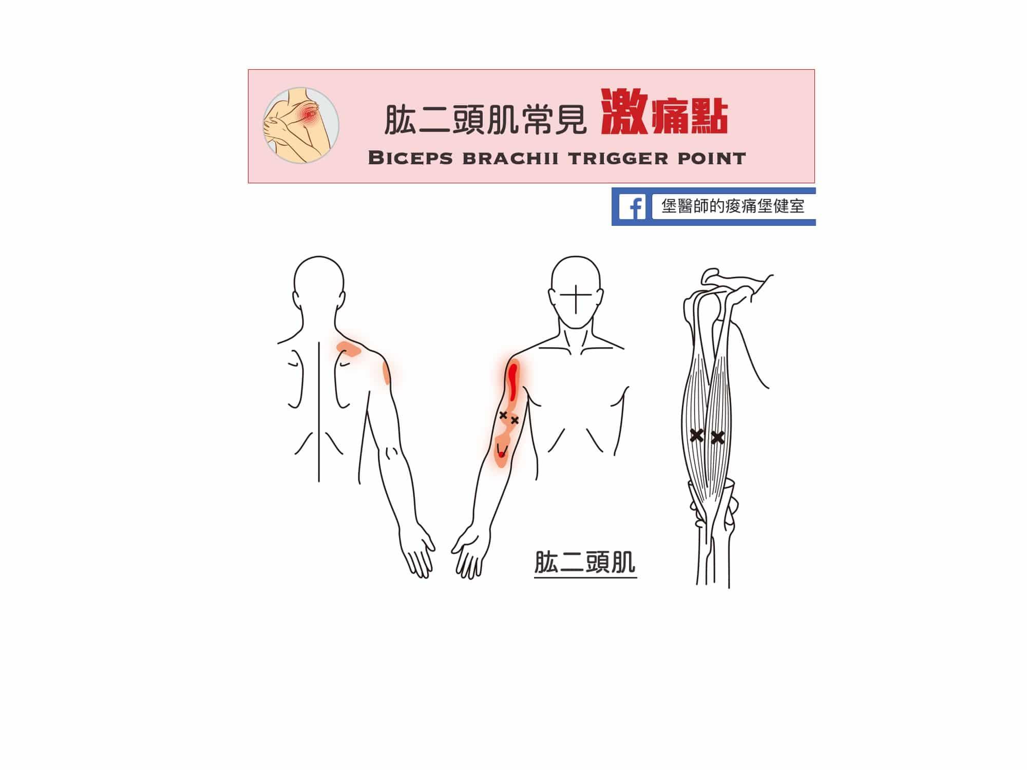 肩膀上臂痛-肱二頭肌