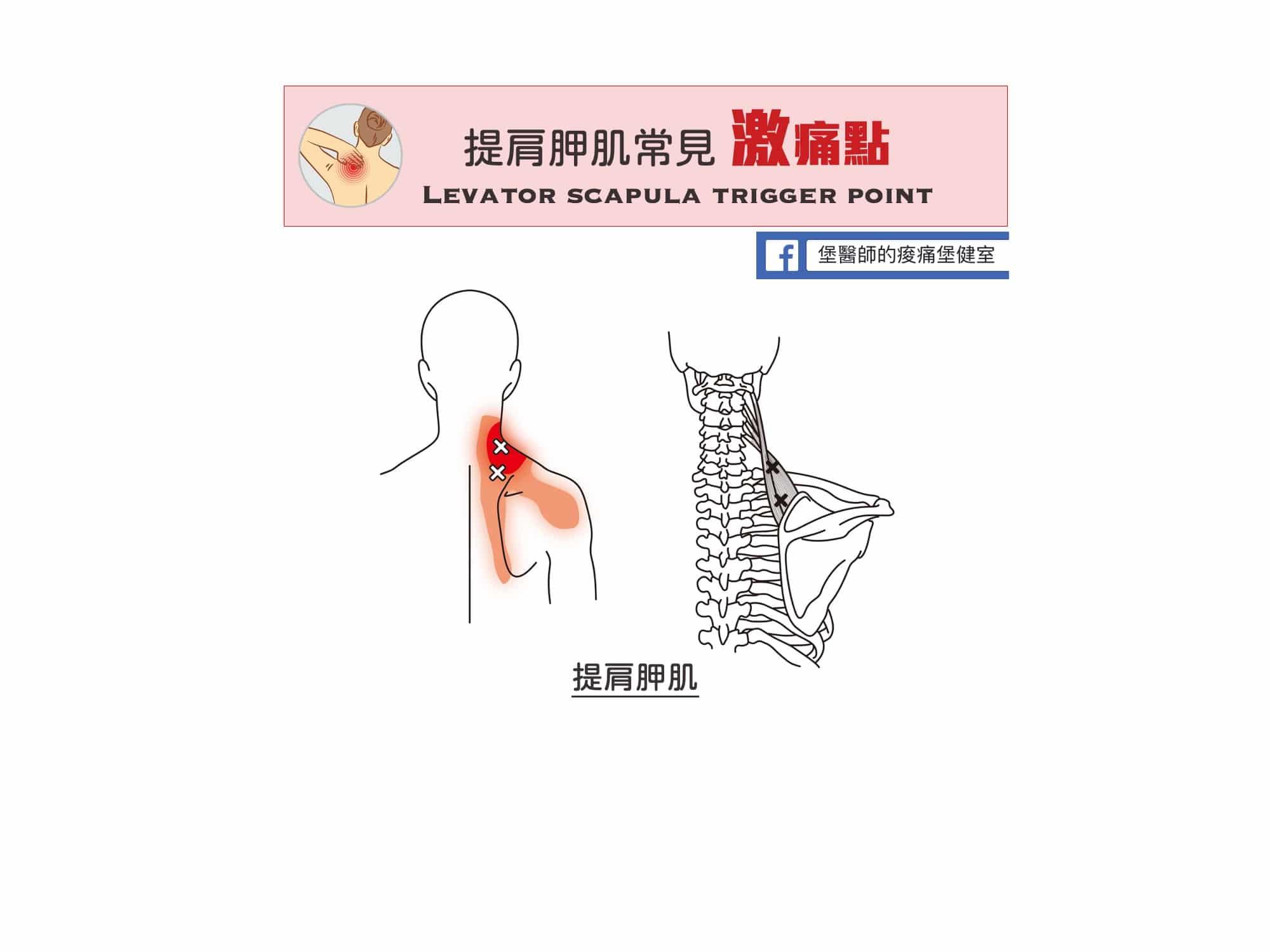 肩頸痛-提肩胛肌