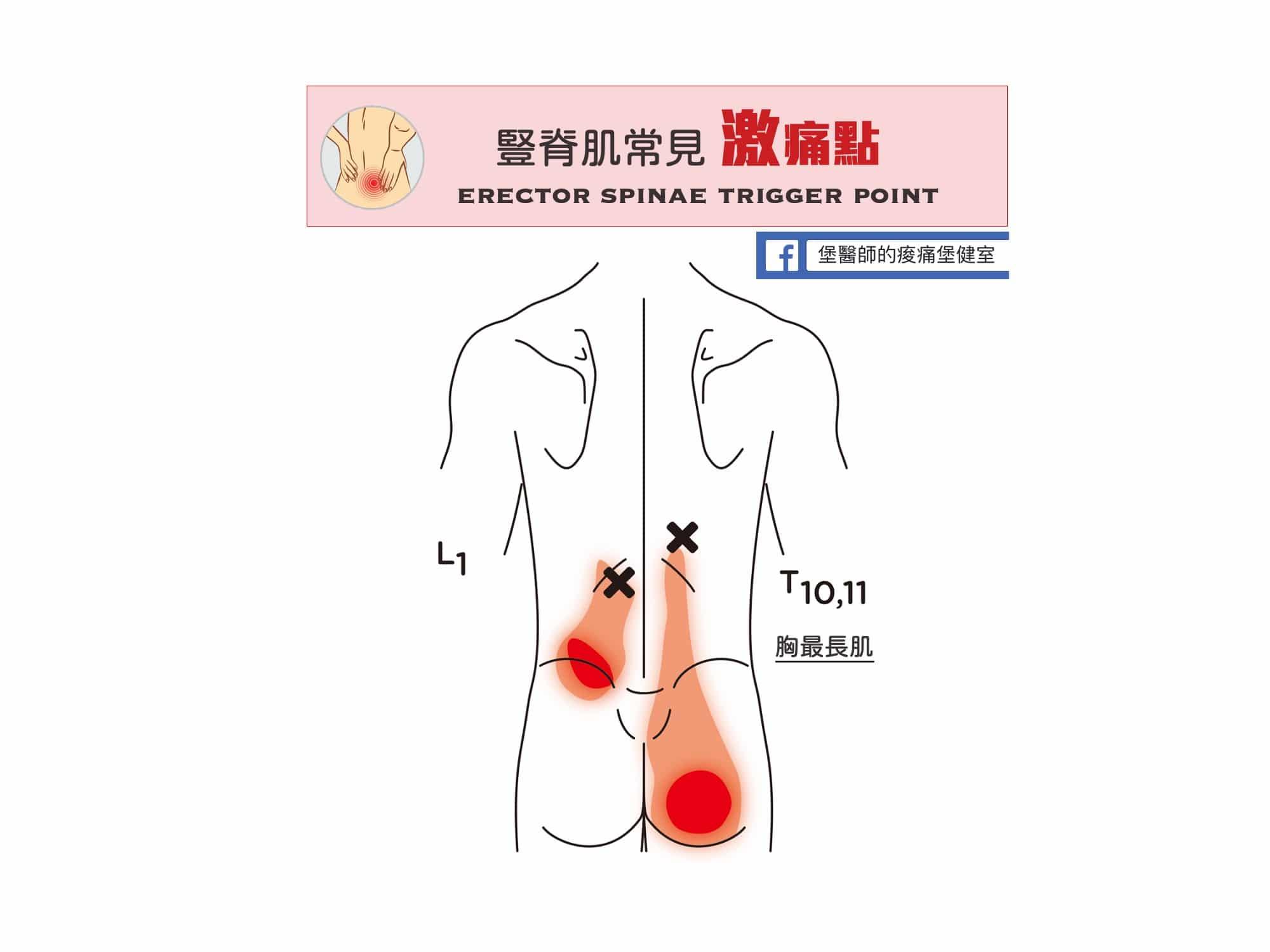 腰部臀部痛-下胸椎豎脊肌