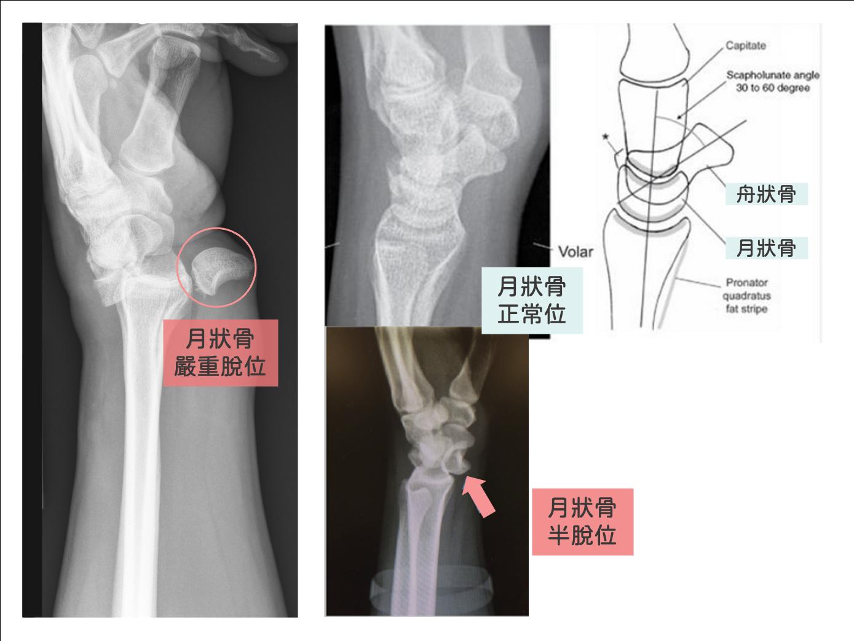 手腕痛-月狀骨脫位